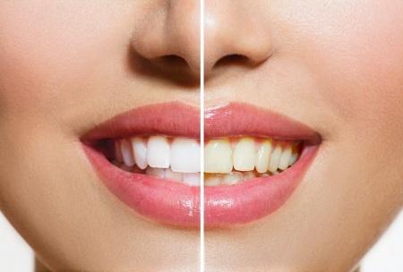 Teeth Whitening in Phoenix, AZ