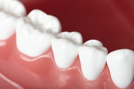 Waterlase Dental Technology