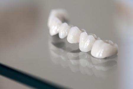 Porcelain Dental Crown