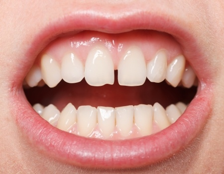 Teeth Gaps